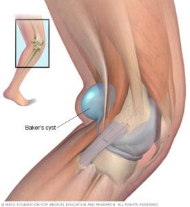 Bakerscyst cause of back of knee pain