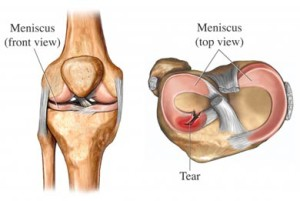 Meniscus tear cause of back of knee pain
